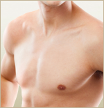 mastopexy-male-breast-reduction-dr-barr-barr-plastic-surgery