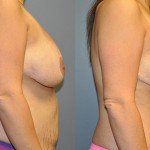 Abdominoplasty & Ultrasonic Liposuction Waist and Chest