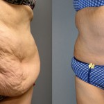 Abdominoplasty & Ultrasonic Liposuction Waist