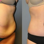 Abdominoplasty & Ultrasound-Assisted Lipoplasty Waist