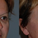 Blepharoplasty - Lower