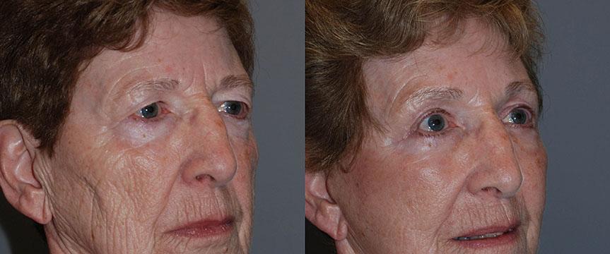 Blepharoplasty - Upper and Lower