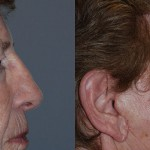 Blepharoplasty - Upper and Lower