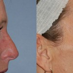 Blepharoplasty - Upper
