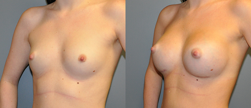 Breast Augmentation, Submuscular, Mentor HP, Cohesive Gel I Siltex 425