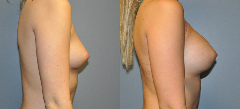 Breast Augmentation, Submuscular, Mentor HP, Cohesive Gel I Siltex 350
