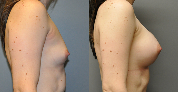 Breast Augmentation, Submuscular, Mentor HP, Cohesive Gel I, Siltex 375