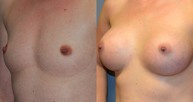 Breast Augmentation, Submuscular, Natrelle Inspira, SRX 370, Smooth Cohesive Gel I