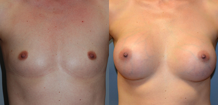 Breast Augmentation, Submuscular, Natrelle Inspira SRX 370, Smooth Cohesive Gel I