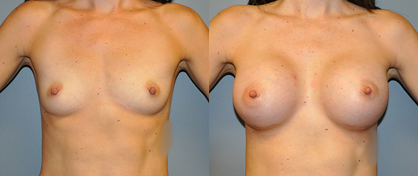 Breast Augmentation Augs Submuscular, Mentor HP Coh I, Siltex 375
