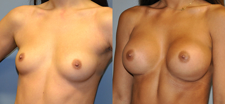 Breast Augmentation, Submuscular, Natrelle Inspira, Cohesive Gel I, Smooth SRX 310 (L) 370 (R)