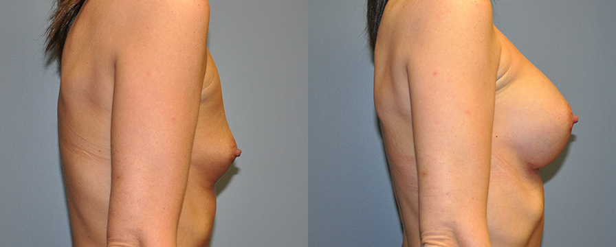 Breast Augmentation, HP Siltex 325 (done at HSN so no note to go off in Nextech), 3