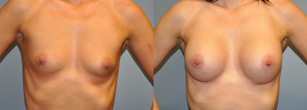 Breast Augmentation, HP Siltex 325 (done at HSN so no note to go off in Nextech)