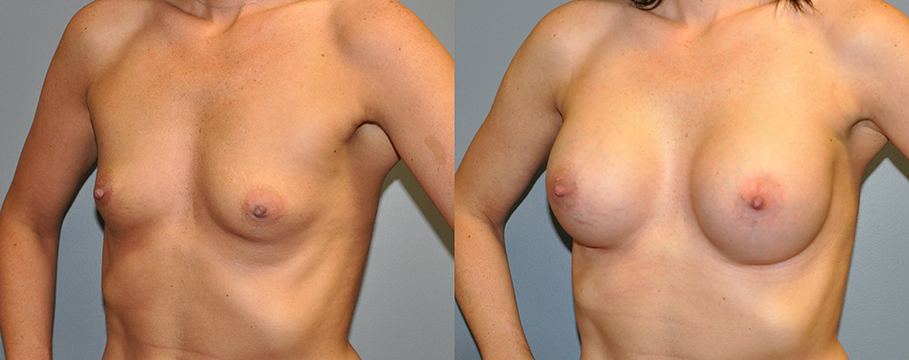 Breast Augmentation, HP Siltex 325 (done at HSN so no note to go off in Nextech),2