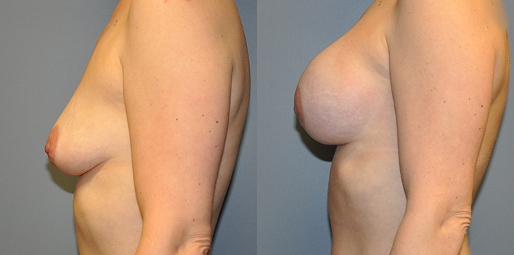 Breast Augmentation, Submuscular, Mentor HP, Cohesive Gel I, Siltex 350