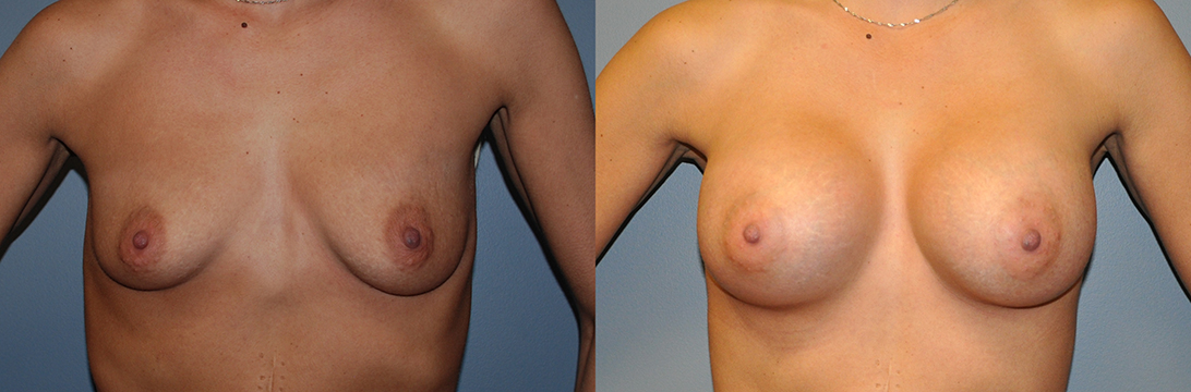 Breast Augmentation, Submuscular, Mentor HP, Cohesive Gel I, Siltex 325 (L) 350 (R)