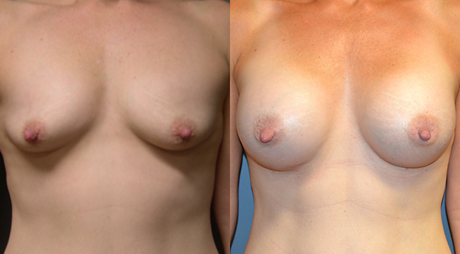 Breast Augmentation, Submuscular, Mentor HP, Cohesive Gel I, Siltex 325