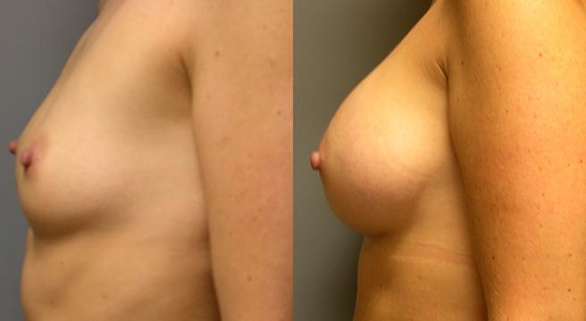 Breast Augmentation Submuscular, Mentor HP Coh I Siltex 350, 2