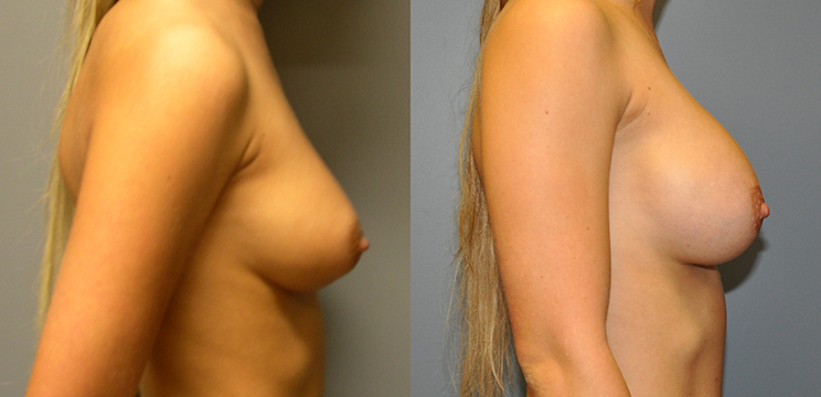 Breast Augmentation, Submuscular, Mentor HP, Cohesive Gel I, Siltex 375(left), Mentor MPP, Cohesive Gel I, Siltex 275 (right)