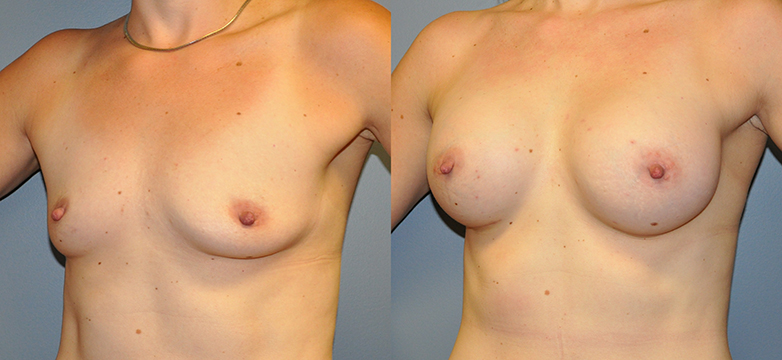 Breast Augmentation, Submuscular, Mentor HP, Cohesive Gel I, Siltex 400