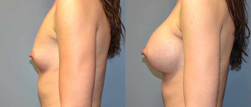 Breast Augmentation, Submuscular, Mentor HP, Cohesive Gel I, Siltex 400 (L) 425 (R)