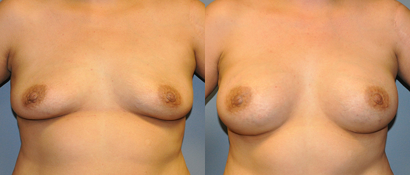 Breast Augmentation, Submuscular, Mentor HP, Cohesive Gel I, Siltex 425
