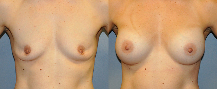Breast Augmentation, Submuscular, Mentor HP, Cohesive Gel I, Siltex 275