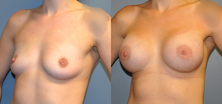 Breast Augmentation, Submuscular, Mentor UHP, Cohesive Gel I Siltex 400 (L), 430 (R)