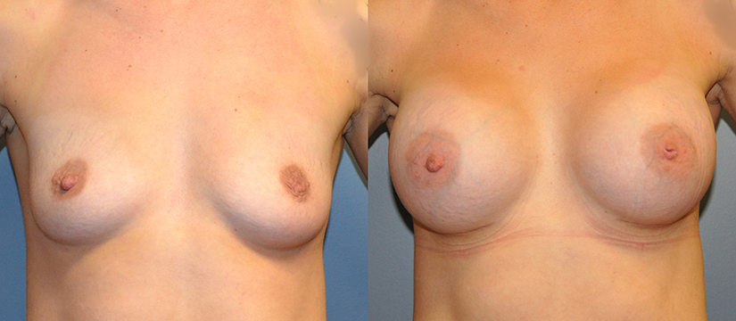 Breast Augmentation, Submuscular, Mentor UHP, Cohesive Gel I, Siltex 400 (L), 430 (R)