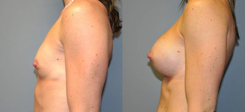Breast Augmentation, Submuscular, Mentor HP, Cohesive Gel I, Siltex 300