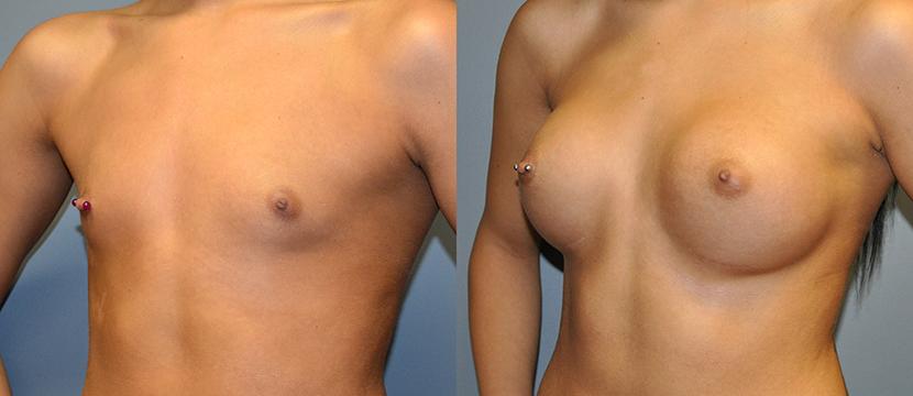 Breast Augmentation Submuscular, Natrelle Inspira, Coh I, Smooth SRX 310, 2