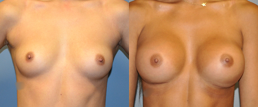 Breast Augmentation Submuscular, Natrelle Inspira, Coh I, Smooth SRX 310 (L) 370 (R)