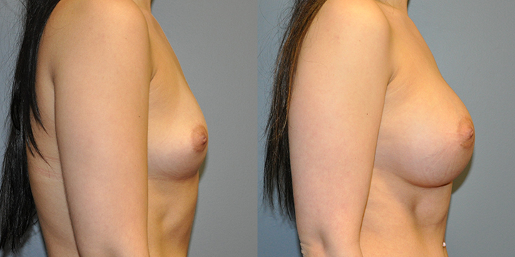 Breast Augmentation, Submuscular, Natrelle Inspira, Cohesive Gel I, Smooth SRX 370