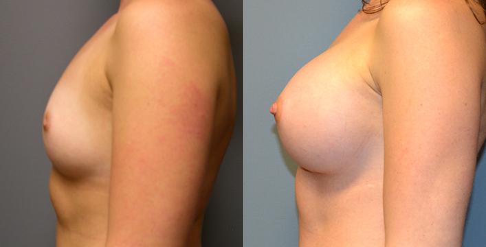 Breast Augmentation Submuscular, Natrelle Inspira, Coh I, Smooth, SRX 370, 3