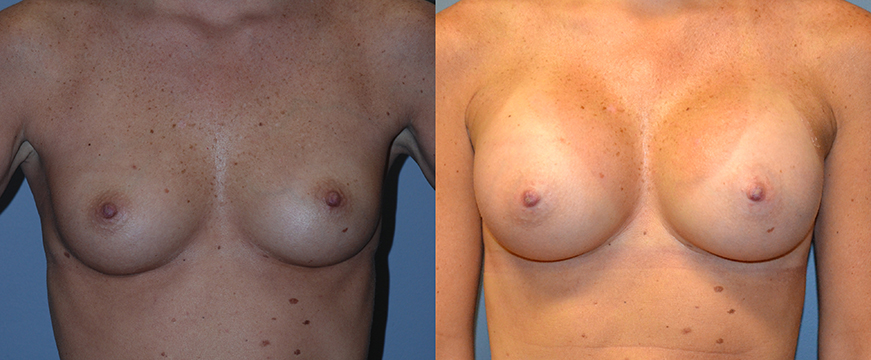Breast Augmentation, Submuscular, Natrelle Inspira, SRX 285, Smooth Cohesive Gel I