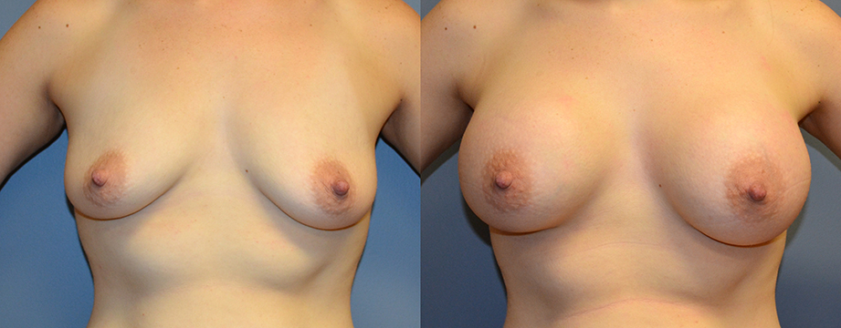 Breast Augmentation Submuscular, Natrelle Inspira SRX 370, Smooth Cohesive Gel I, 1
