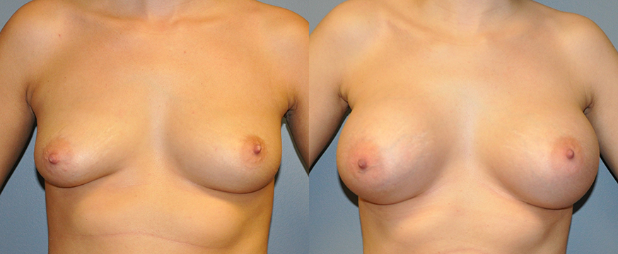 Breast Augmentation Submuscular, Natrelle Inspira SRX 415, Smooth Cohesive Gel I, 1
