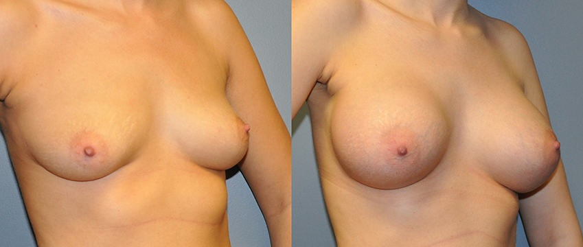 Breast Augmentation Submuscular, Natrelle Inspira SRX 415, Smooth Cohesive Gel I, 2