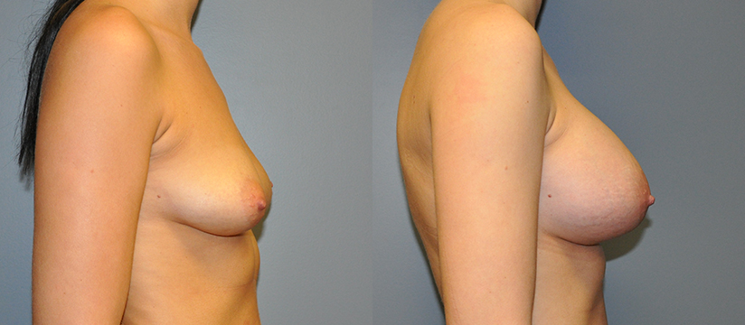 Breast Augmentation Submuscular, Natrelle Inspira SRX 415, Smooth Cohesive Gel I, 3