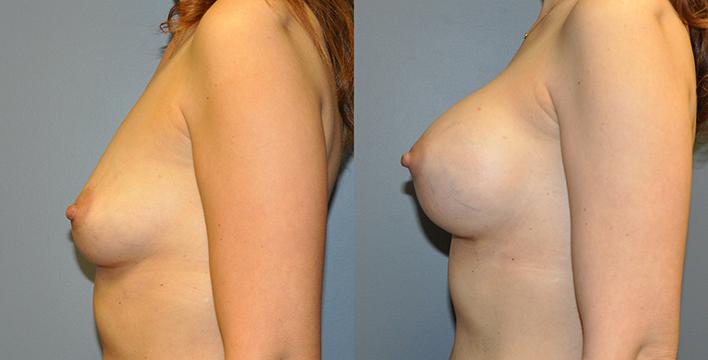 Breast Augmentation Submuscular,Mentor HP Coh I Siltex 325, 3