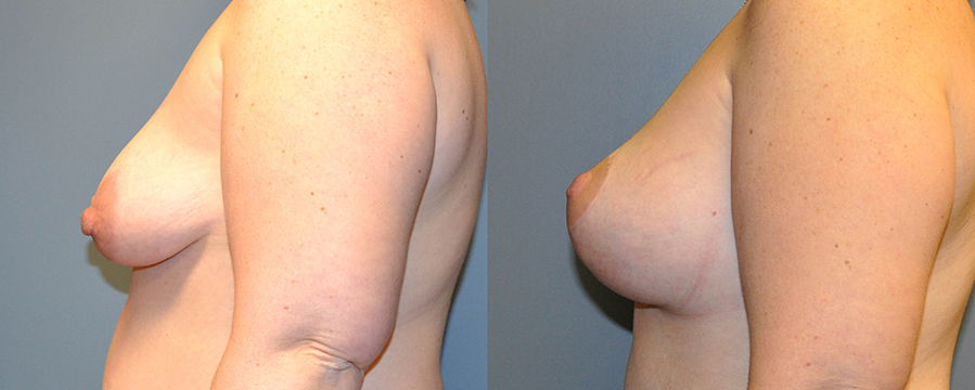 Breast Augmentation and Mastopexy before and after barr plastic surgery sudbury ontario