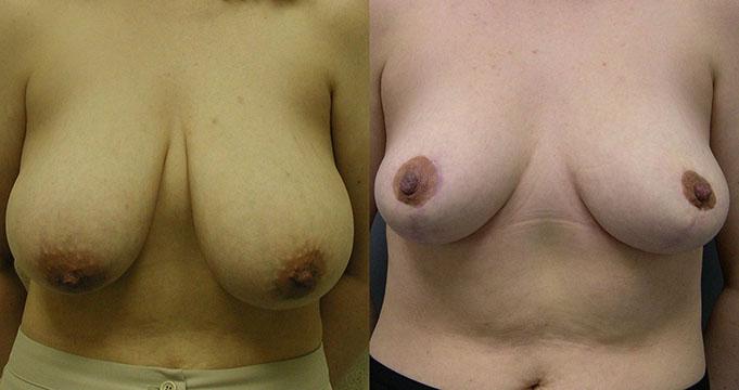 Sudbury ontario nude self pics