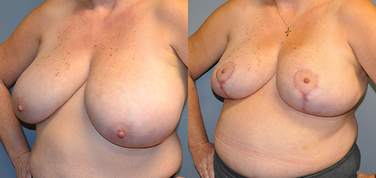 Breast Reduction - Scars shown in these early post-operative images will fade over time
