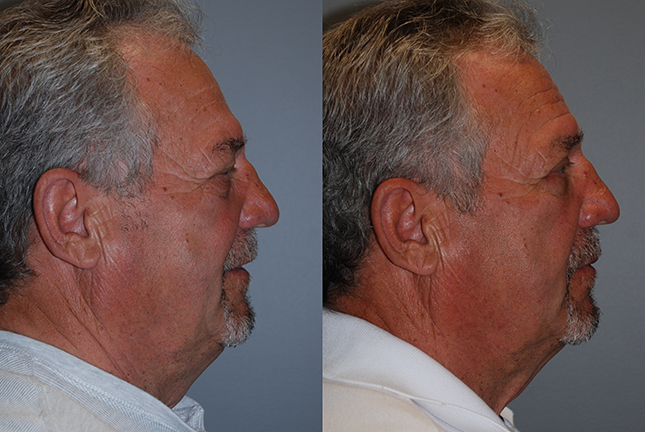 Fat Grafting Cheeks and Nasolabial Folds
