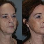 Fat Grafting Cheeks and Upper Lip