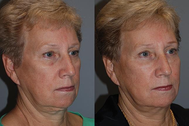 Fat Grafting Cheeks, Lower Lids, Mandibular Border, Marionette Lines, Nasolabial Folds