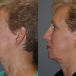 Fat Grafting Cheeks, Lower Lid, Mandibular Border, Marionette Lines, Nasolabial Folds