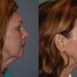Fat Grafting Tear Troughs, Cheeks, Nasolabial Folds, Marionnette Lines, Chin, Mandibular Border