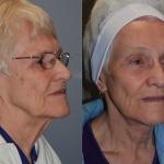 Fat Grafting Tear Troughs, Cheeks, Nasolabial Folds, Peri-Oral Region