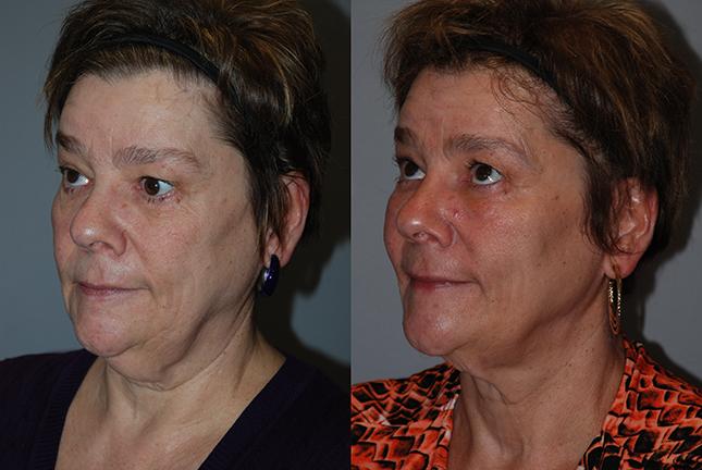 Fat grafting cheeks, temples, chin, mandibular border 8